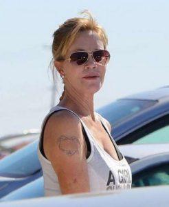 Melanie Griffith tatuaggio rimosso